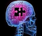 Alzheimer-diabet